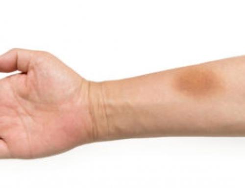 あざができやすいのは理由があった!?色でわかるあざの状態と予防法を知ってキレイな肌を保とう