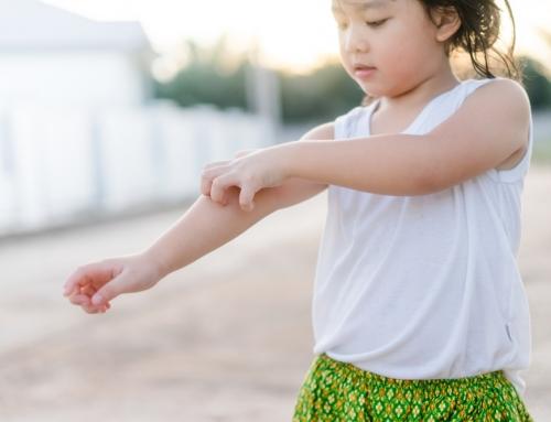 手足口病がうつる期間は?感染経路と予防法!大人も注意|医師監修