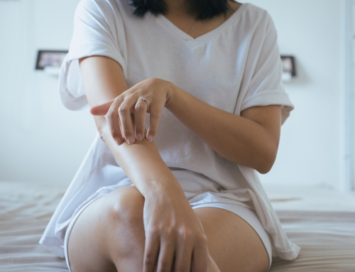【大人の水疱瘡に注意】重症化や再発症も。仕事は?症状が軽いときは?|医師監修